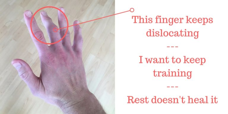 finger dislocation treatment and training