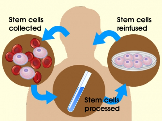 stem cell therapy results
