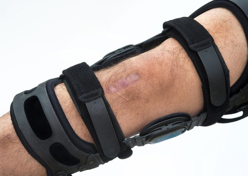 mcl sprain brace