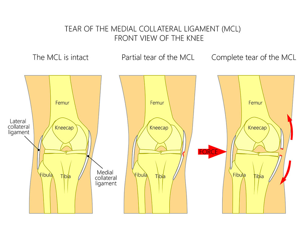 grade 1 mcl sprain recovery time