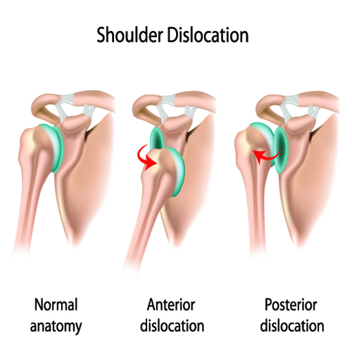 dislocated shoulder dislocation