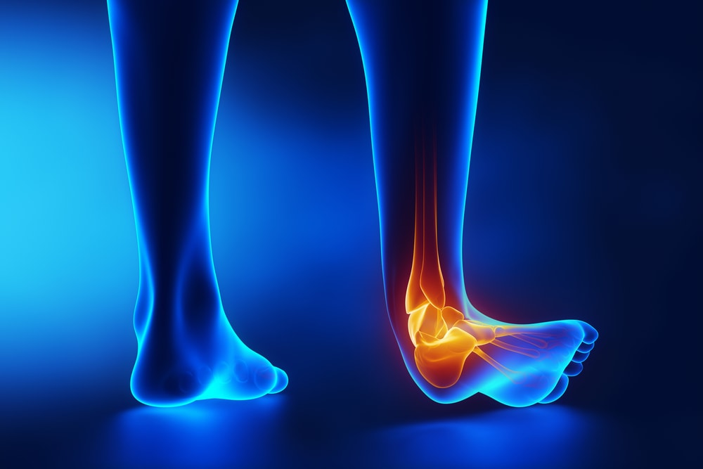 ankle sprain during ankle injury treatment