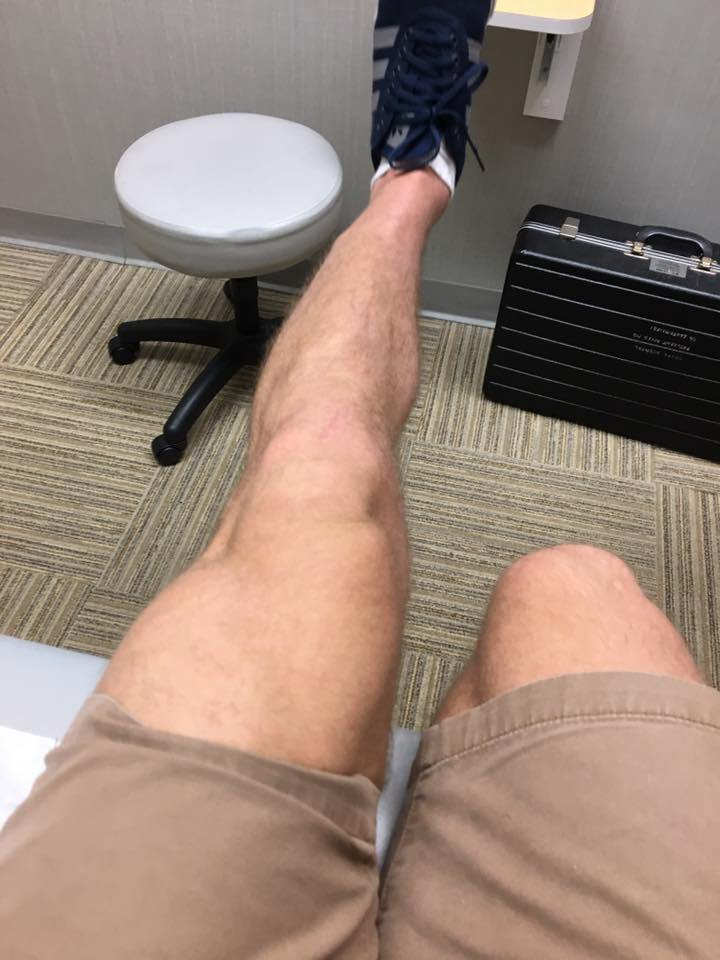playing sports with a torn acl