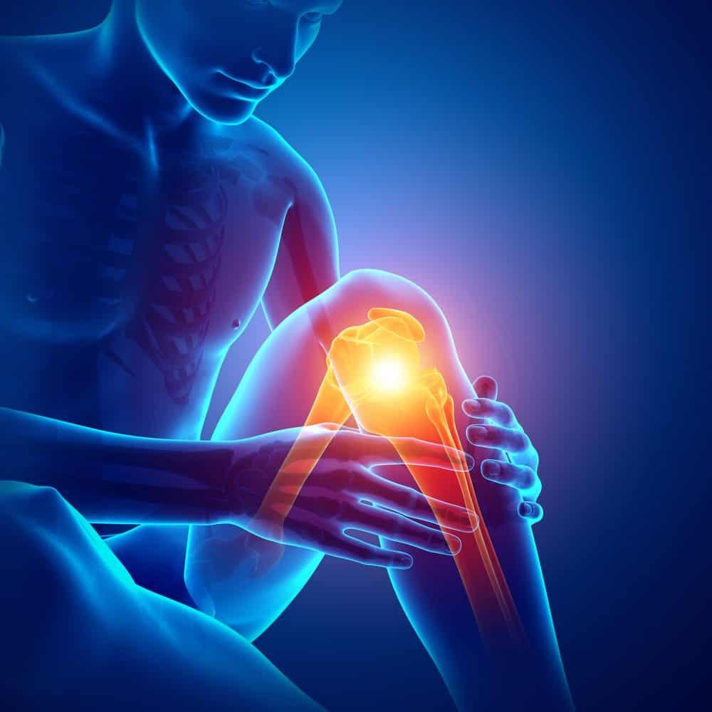 Do I need a knee MRI?