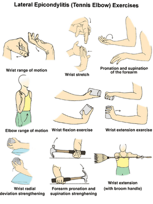 tennis elbow treatment exercises