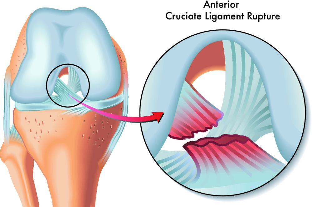 An ACL injury is a tear or sprain of the anterior cruciate ligament, one of the strong bands of tissue that help connect your thigh bone (femur) to your shinbone (tibia)