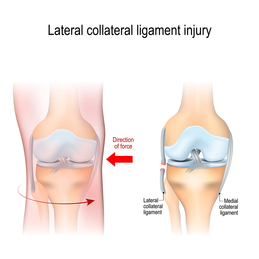 Lateral collateral ligament (LCL) injury