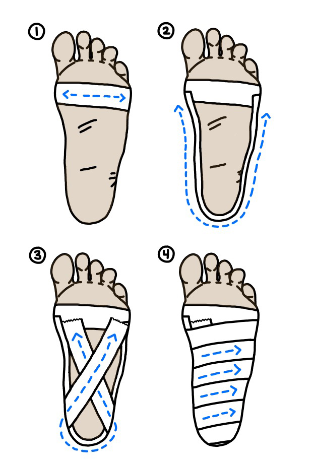 How to tape your own foot for plantar fasciitis
