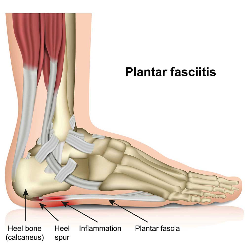 Plantar Fasciitis (Heel-Pain)